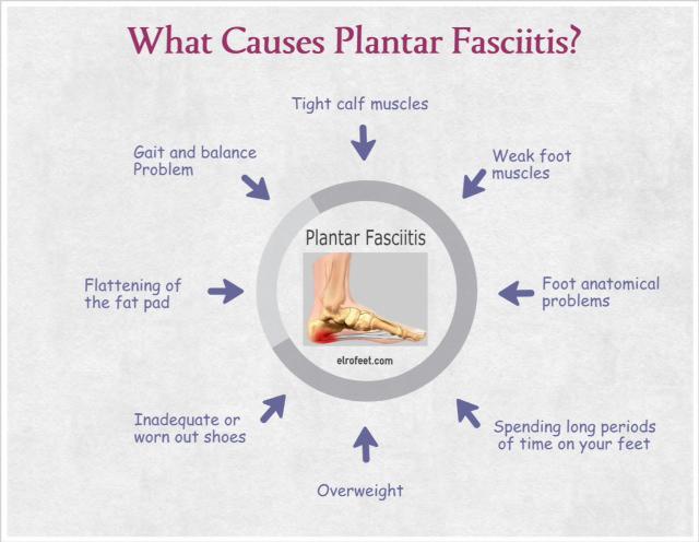 PlantarFasciitis.JPG