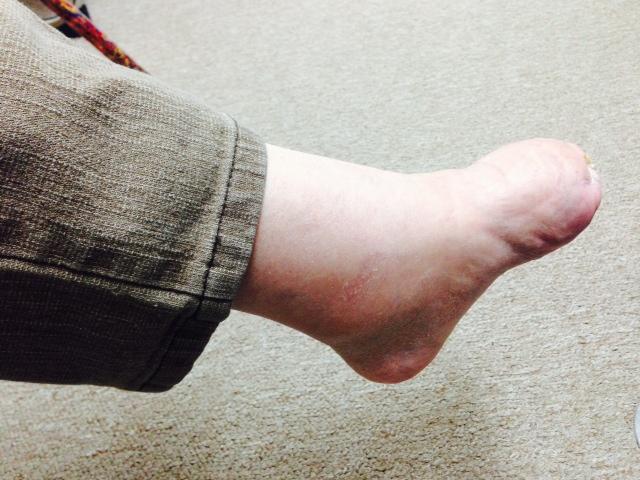 Diabetic Foot Patient