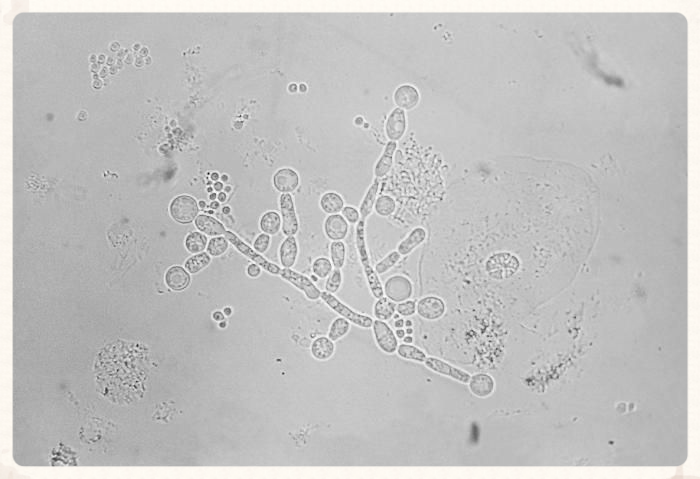 Image of Candida albicans from the Public Health Image Library