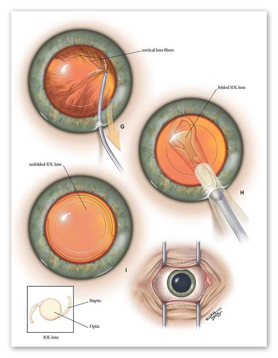 Left Cataract Extraction with IOL Insertion   Medium: Illustrator & Photoshop  Objective: To effectively depict the key steps in a surgical procedure for the purpose of educating a surgical resident.  © 2013 Ellen Davis