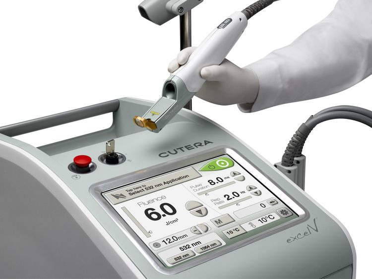 Learn more about our new Cutera Excel V System. - The Cutera Excel V laser system uses a high-power laser with targeted pulses to repair skin conditions, including sun spots, rosacea, spider veins, acne scars, and other vascular conditions.