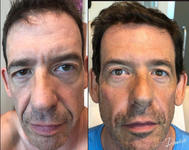 Rhytids (wrinkles) following Botox & Fillers - Learn More