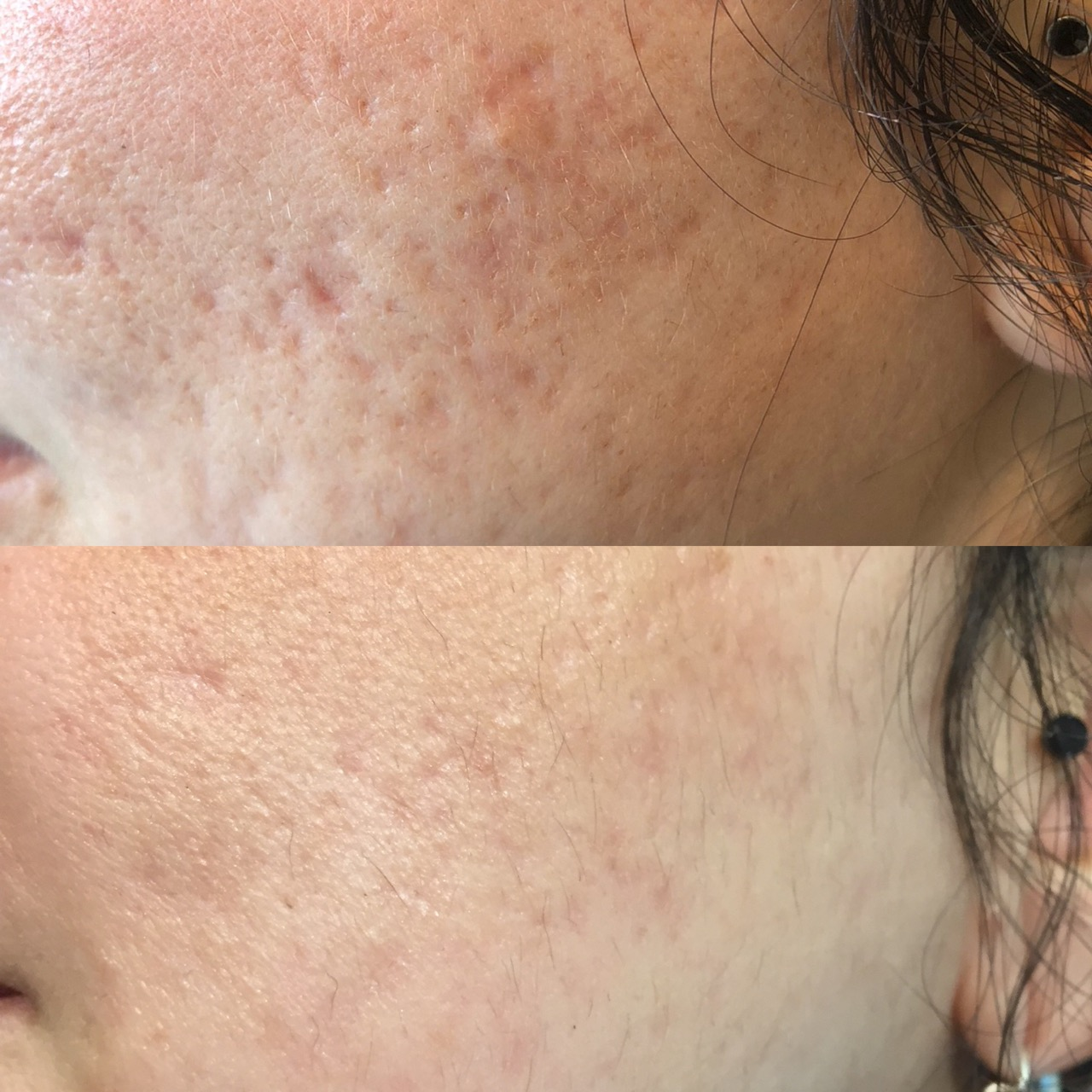 Acne Scarring following Radiofrequency & Microneedling -