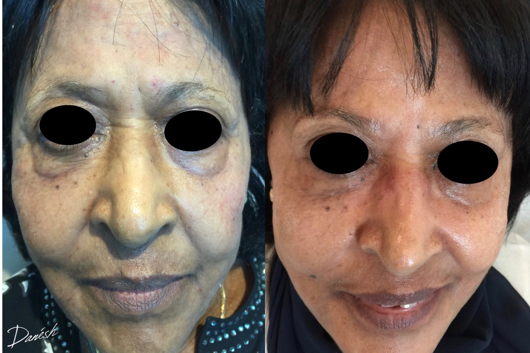Rhytids (wrinkles) following Botox & Fillers -