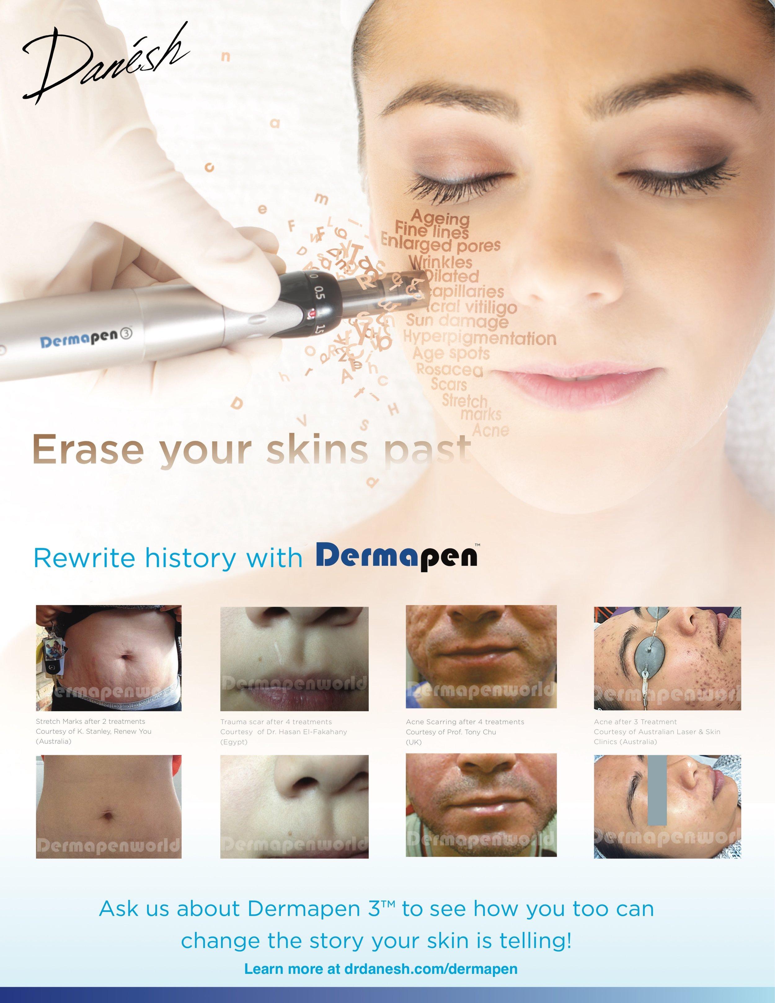 Dermapen- Danesh Dermatology.jpg