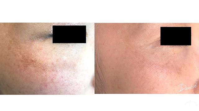 This before and after features our new laser, the Cutera Excel V! This laser treats discoloration on the face, hands, chest, legs and arms caused by sun damage.  #dermatology #skincare #discoloration #beverlyhills #beforeandafter #results #sundamage #sundamagedskin