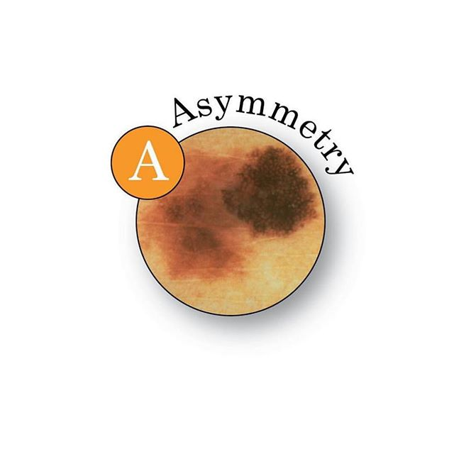 Make sure to look out for these ABCDEs of melanoma.  Knowing these can help save your life by catching melanoma early. Thank you @aadskin1!