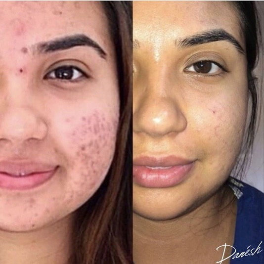 Before & After Microneedling on acne scarring. These results were seen after four Microneedling sessions. Visit our website DrDanesh.com for more information on the procedure and more before & after comparisons. #microneedling