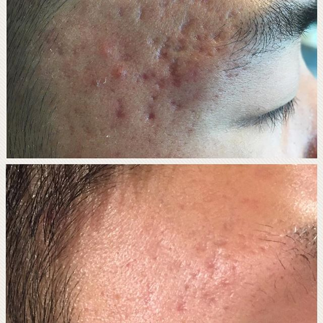 Results of microneedling #microneedling #acnescars #transformationtuesday #results #daneshderm