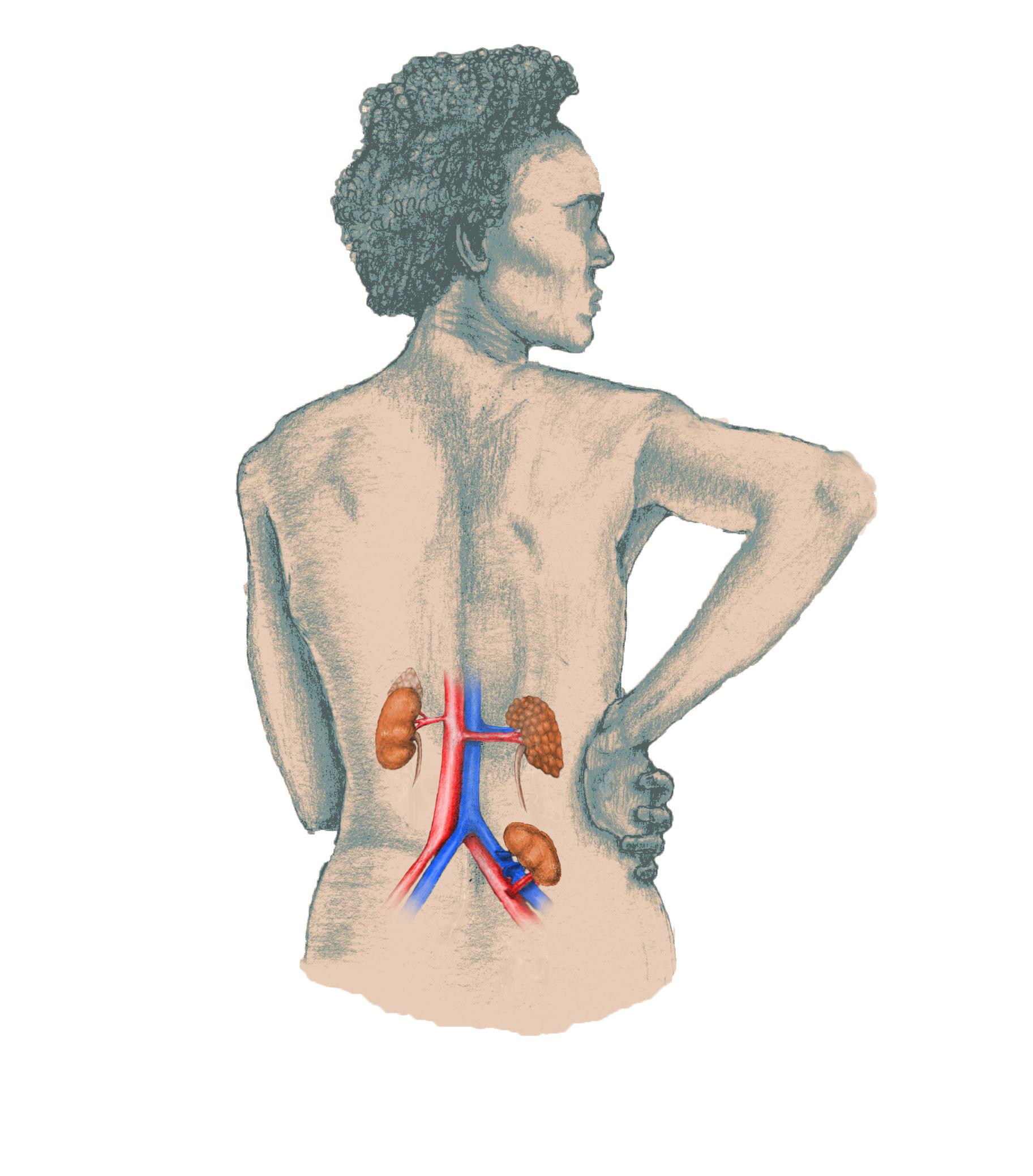 kidney transplant 1.jpg