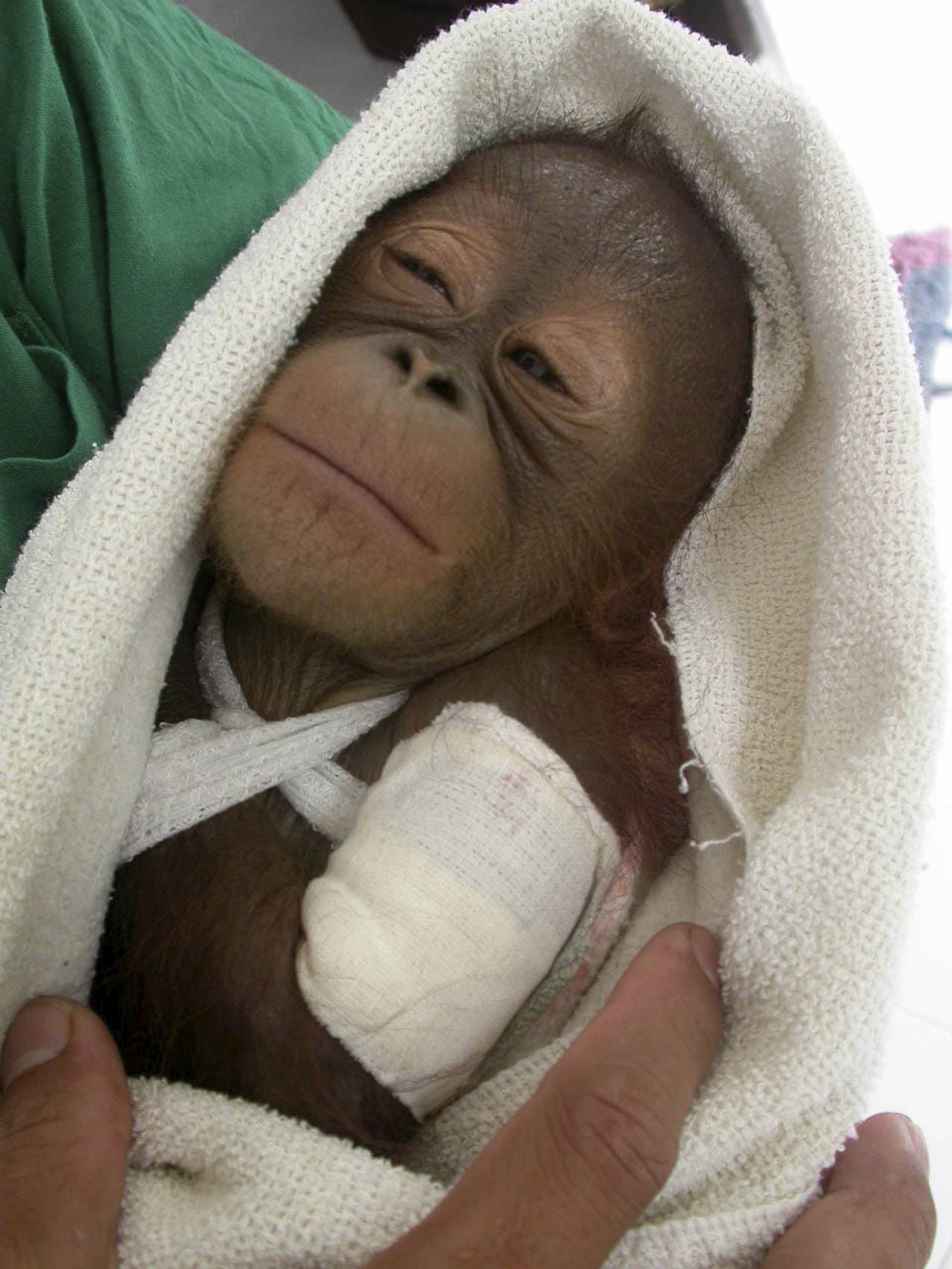 Orphan orangutan receives treatment after being injured during a hunt in which her mother died