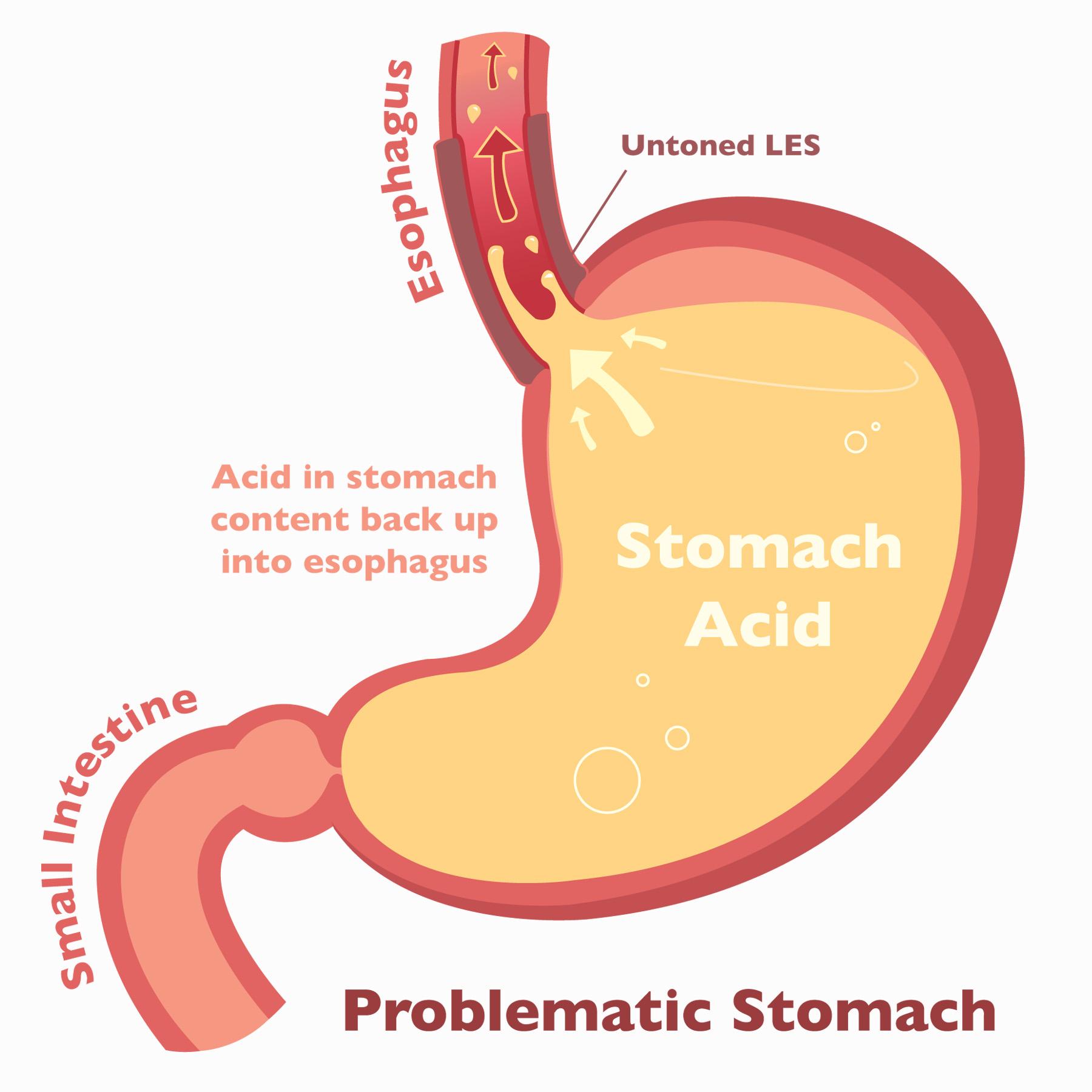 Stomach_Vector_Problem.jpg
