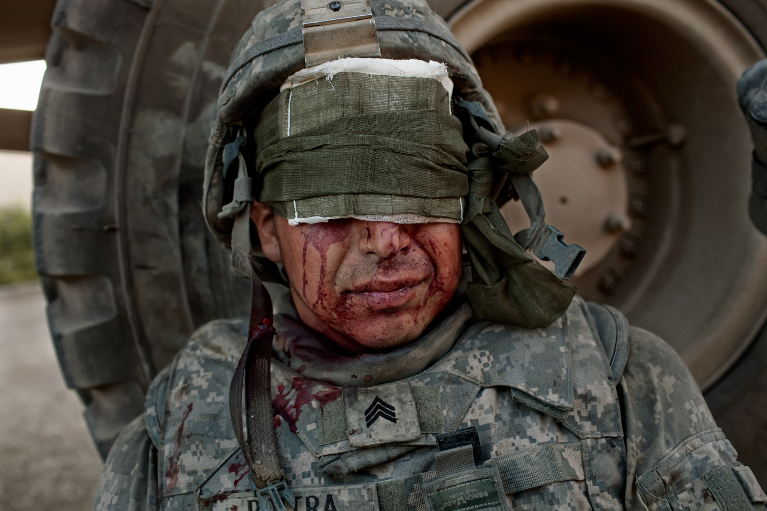 U.S. Army Sergeant Phil Poitra sits with head injuries after an  improvised explosive device attack on his vehicle in the Tangi Valley, Wardak Province, Afghanistan.