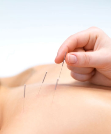 Ask about our sports acupuncture services!