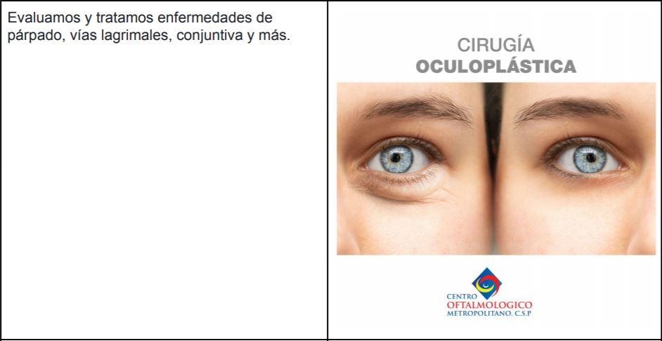 Cirugía Oculoplastica