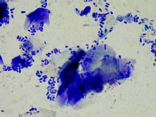 Malassezia otitis cytology.jpg