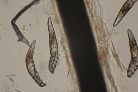 Miscoscopic image of Demodex canis mites