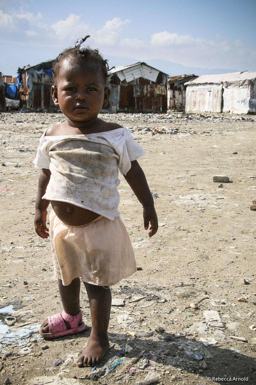 Cite Soleil Belly, Haiti
