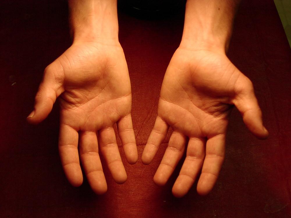 Hands  by David Niblack,  http://www.imagebase.net/