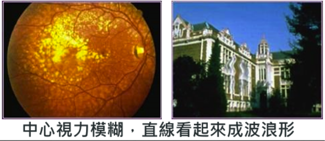 Macular drusens and RPE detachment and subsequent distortions in the vision