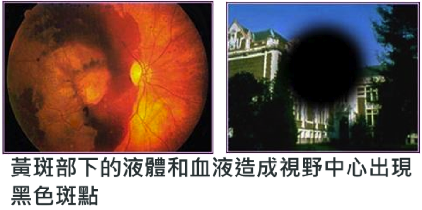 WET AMD with large hemorrhagic retinal area and scotoma in the vision