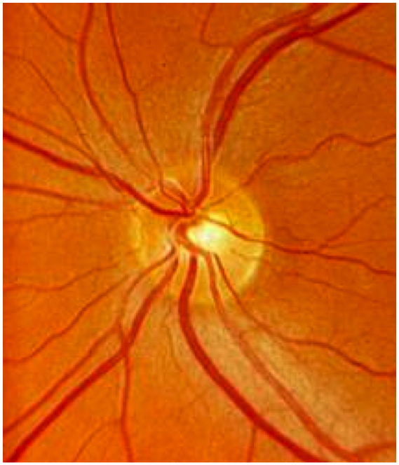 Normal Optic Nerve