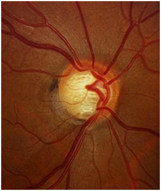 Glaucomatous Optic Nerve- loss especially of inferior nerve fibers
