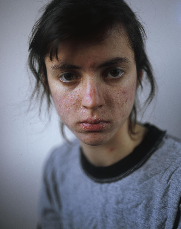 Dry Skin.jpg