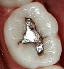 Why does this little silver filling really create so much controversy with regard to cremation?