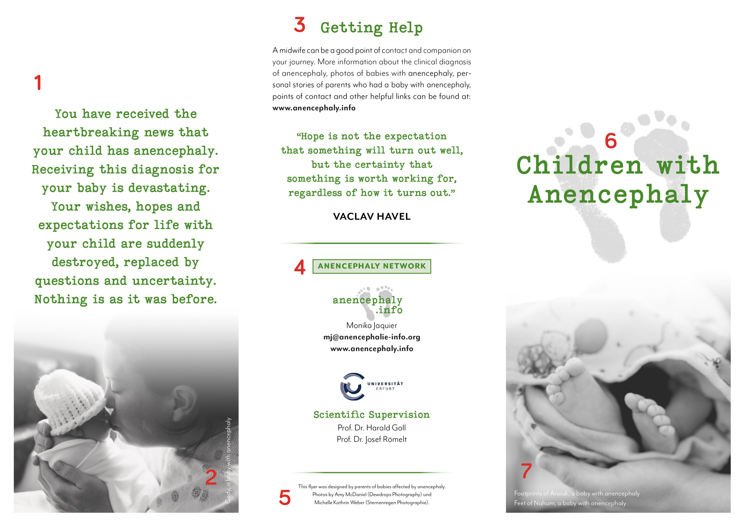 Anencephaly Brochure - Side 1 for translators.jpg