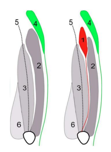 Looking at the left anterior thigh, (from the front) 1-  Tensor Vastus Intermedius  (TVI) 2-  Vastus Lateralis  (VL) 3-  Vastus Intermedius  (VI) 4-  Tensor Fasia Latae  (TFL) 5-  Rectus Femoris  (RF) 6-  Vastus Medialis  (VM) _Picture from research article Grob et al