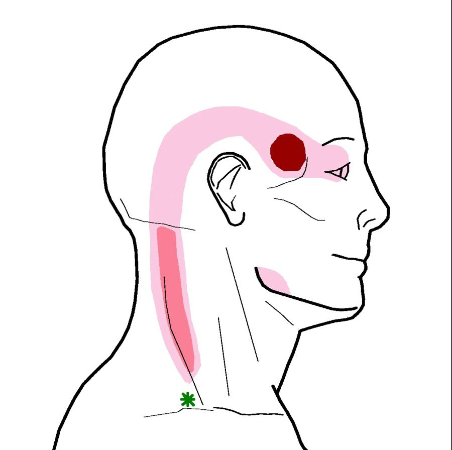 The most common trigger point in the  Upper Trapezius  muscle that refers up to the temple and behind the eyes.