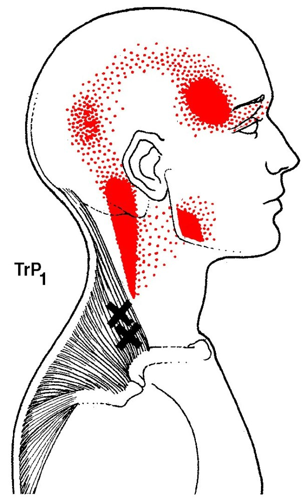 Upper Traps Referral Pattern (areas marked in red).