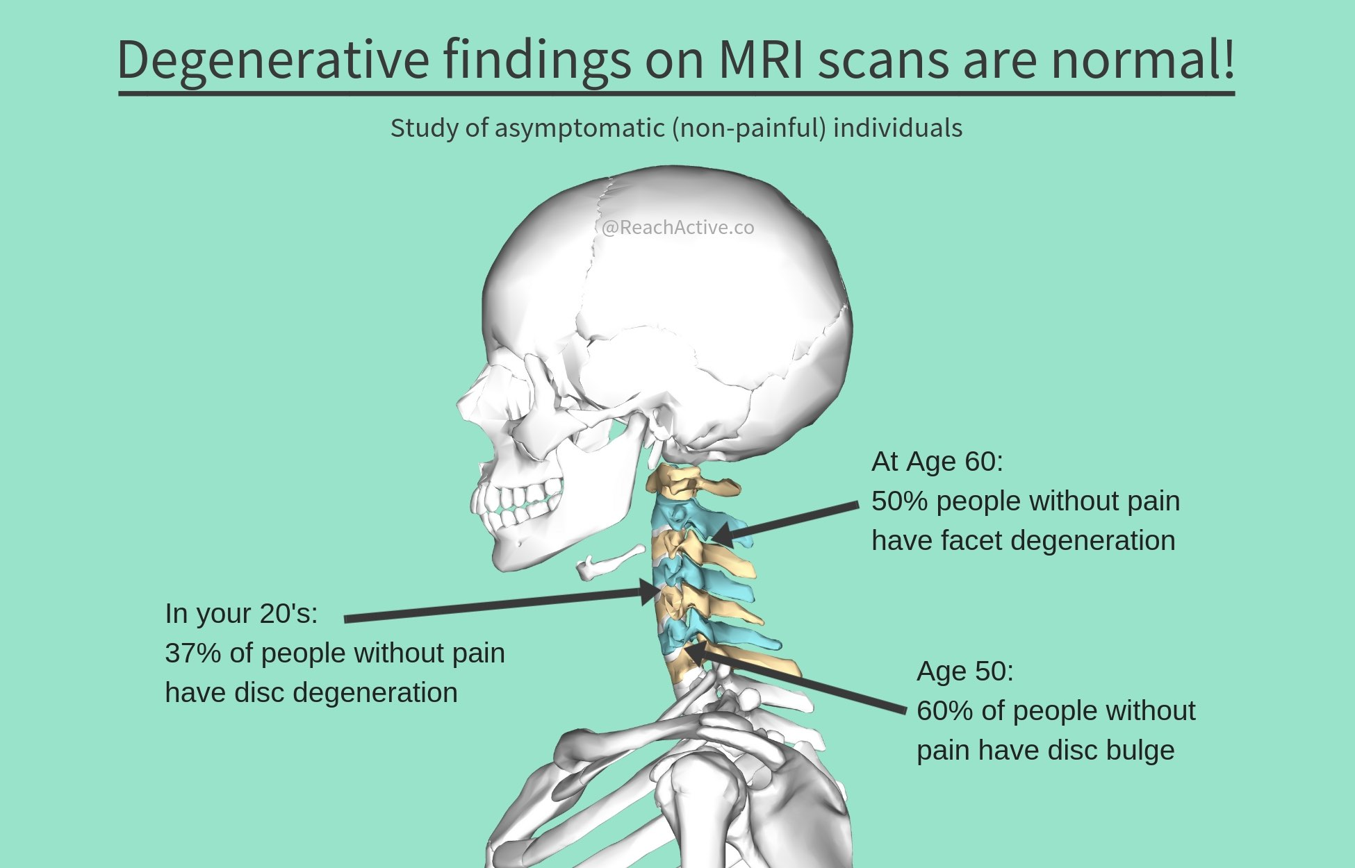 Reference:  Nakashima H, Yukawa Y, Suda K, Yamagata M, Ueta T, Kato F. Abnormal findings on magnetic resonance images of the cervical spines in 1211 asymptomatic subjects. Spine. 2015 Mar 15;40(6):392–8