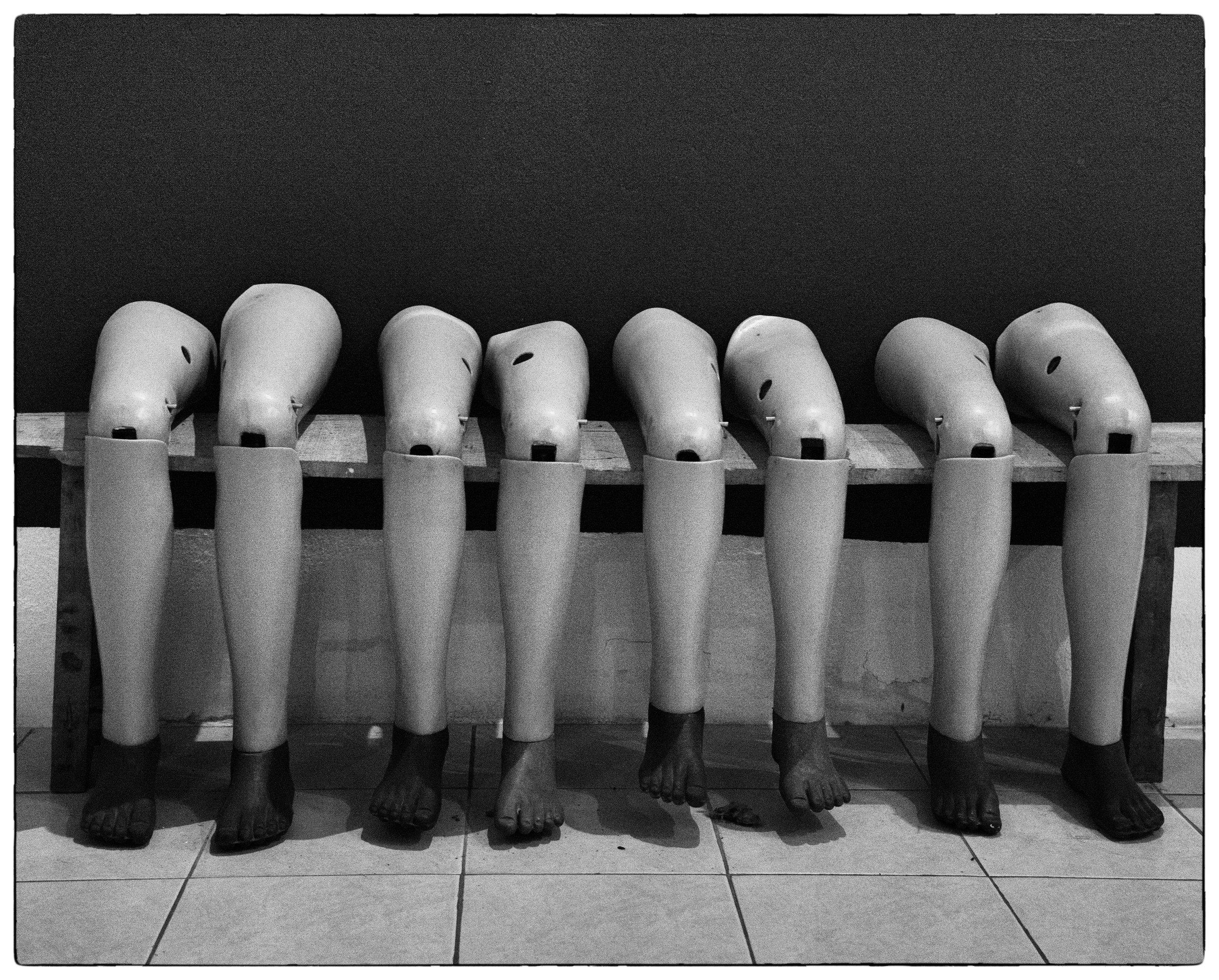 Prosthetic legs, Vientiane, Laos.jpg