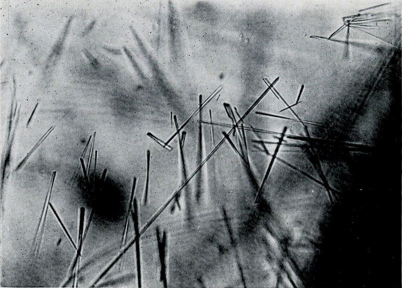 Fig. 3. Tremolite needles of varying lengths. 125 x.