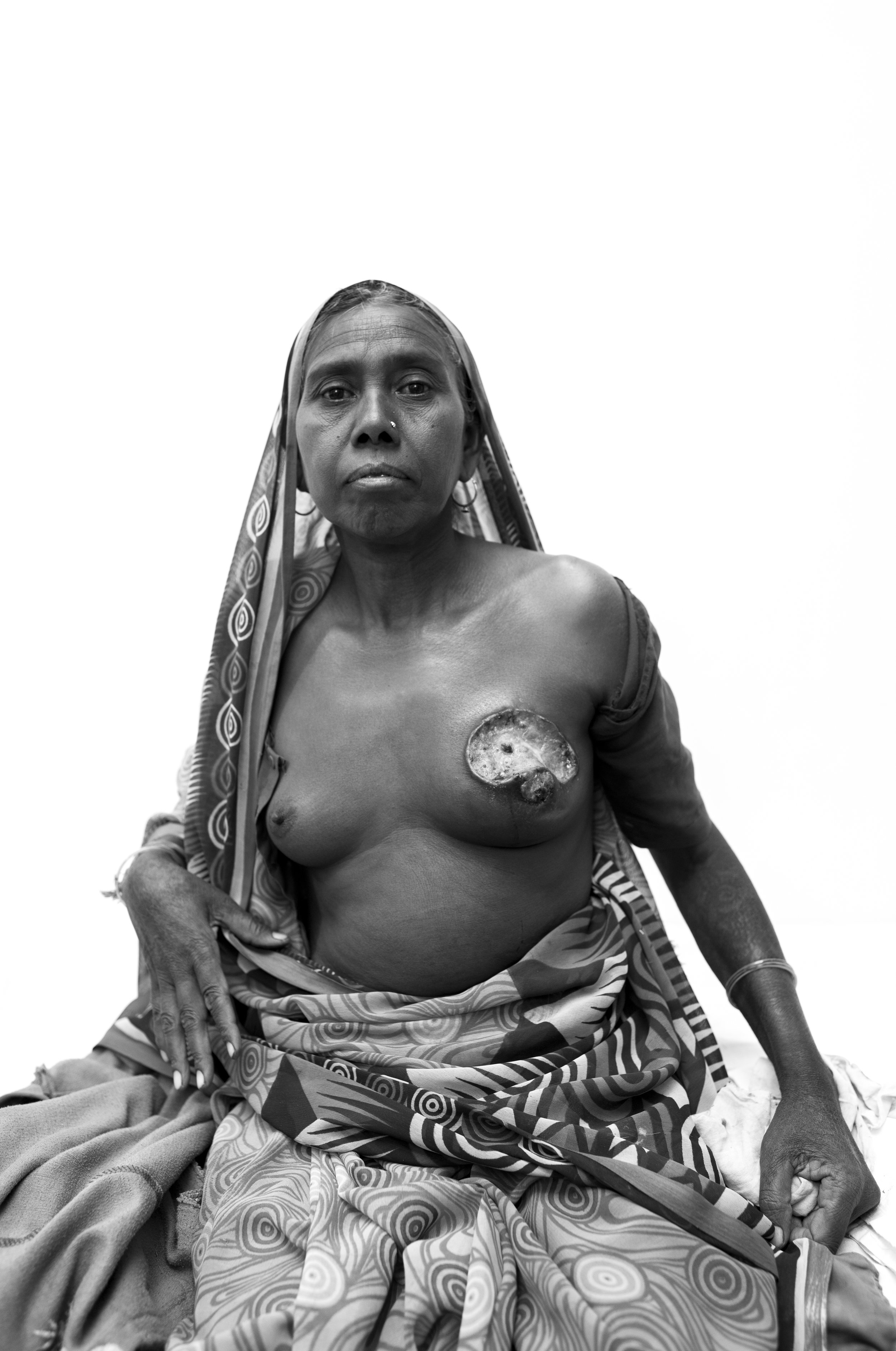 A patient in Melghat, India and a moment where as a photographer you're really left changed after the capture. During pre-operative rounds I was asked to shoot this patient.She is from the tribes surrounding the hospital and was awaiting for her mastectomy procedure the following day. Clearly at this far stage it could only be palliative treatment. I've thought about this image for 10 months since I took it, and looking at it now I see a woman with incredible strength and pride who represents one side of poverty - limited access to healthcare.