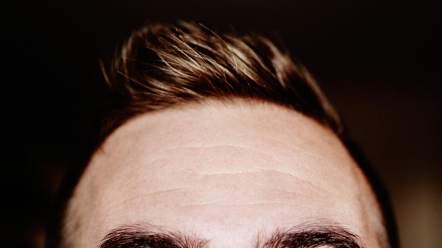 How to treat thinning hair: The modern guy's guide - Today's best options for preventing, treating, and reversing hair loss.