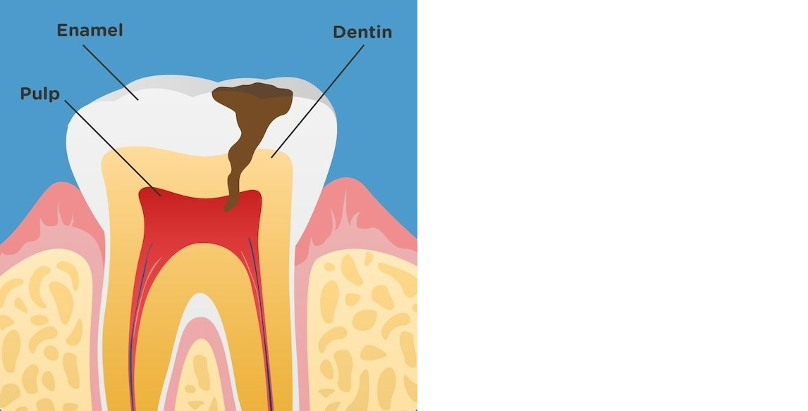 4. Don't wait until you have a toothache!