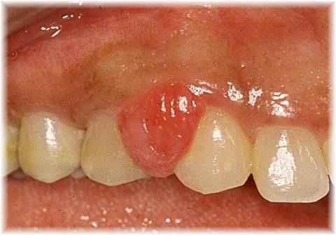 Bleeding gum tissue