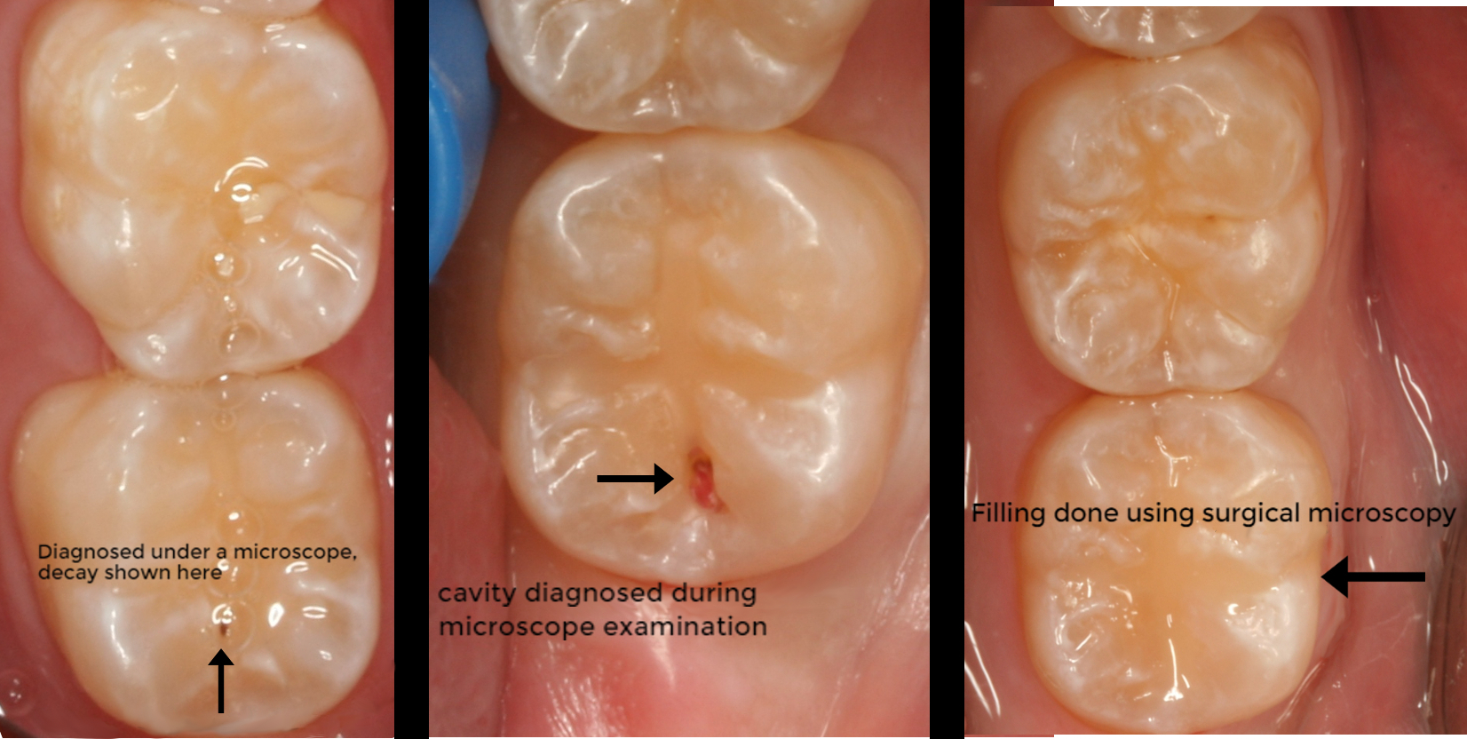 Composite Fillings 1.jpg