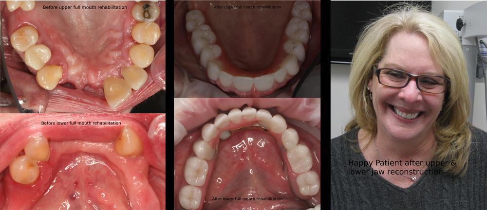 Full+Mouth+Rehabitation+2.jpg