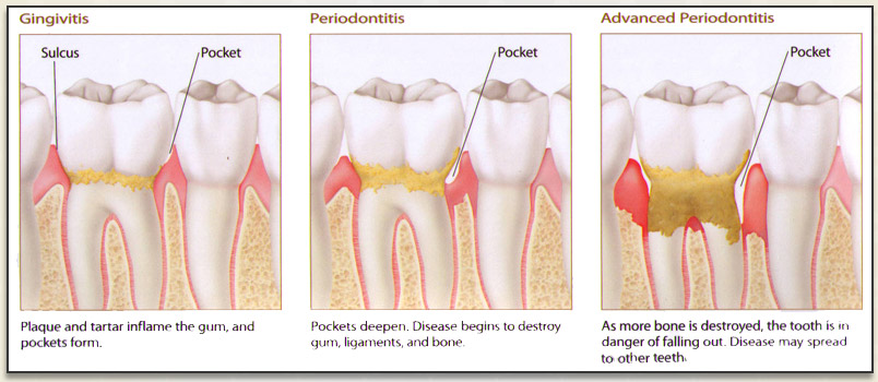 Teethhealth