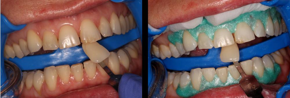Teeth+Whitening.jpg