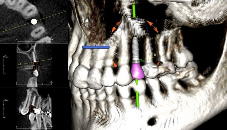 Here at Santa Monica Esthetic Dentistry we use Cone Beam CT scans are computer guided sugery guides