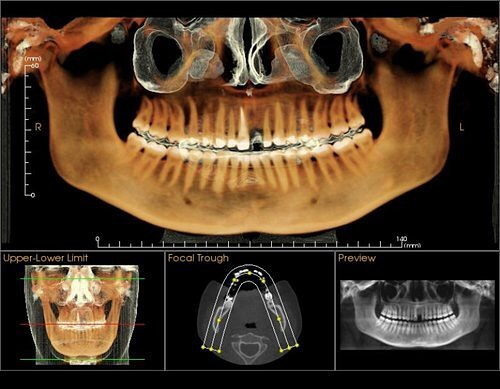Cone beam CT scans allow the Dr. To see everything that is going on in your mouth #conebeamct #santamonicadentist #santamonicaedentistry #icatflx #dentaltech