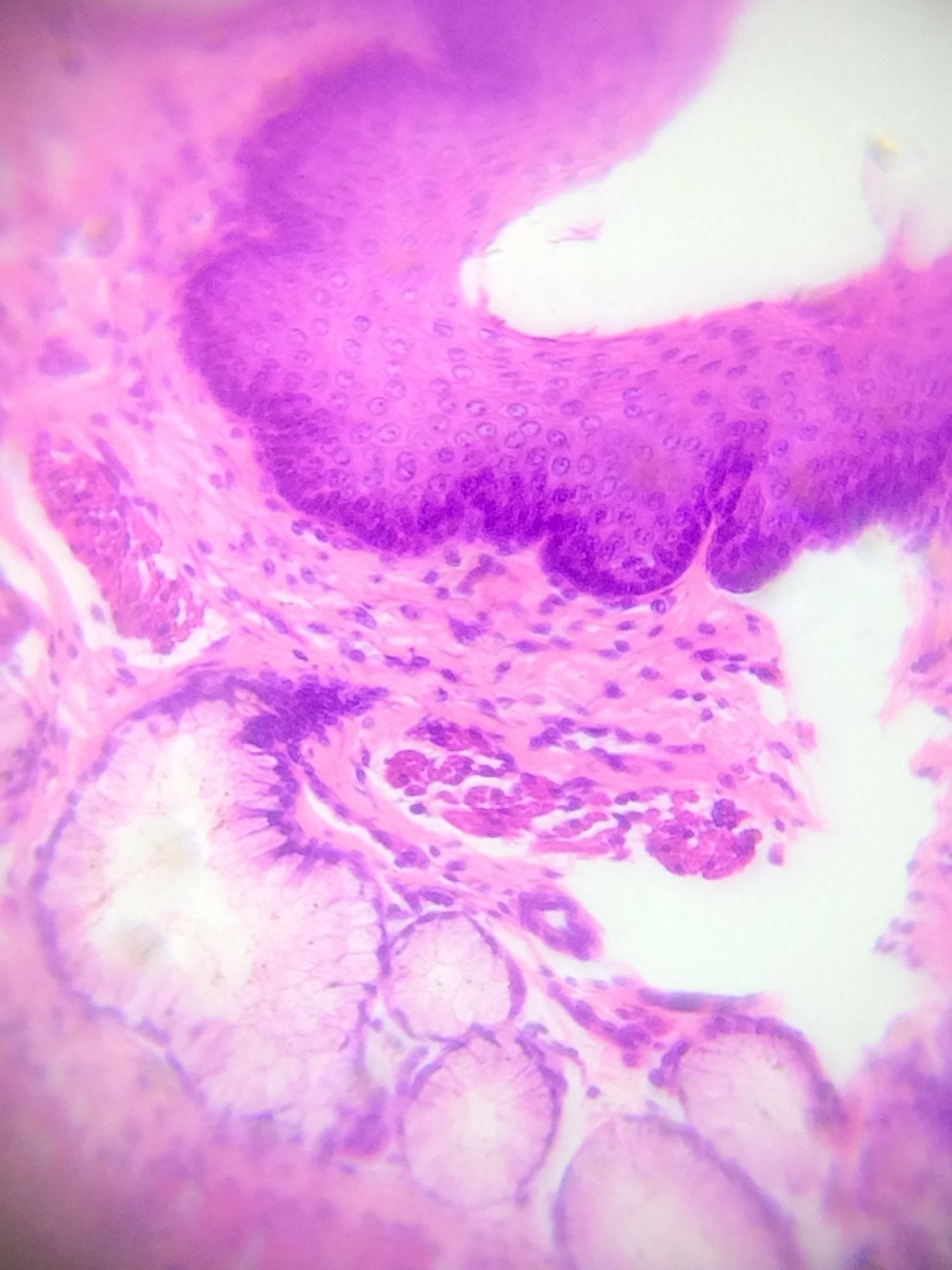Esophagus tissue at ~377x (170x optical with 2.22x digital)