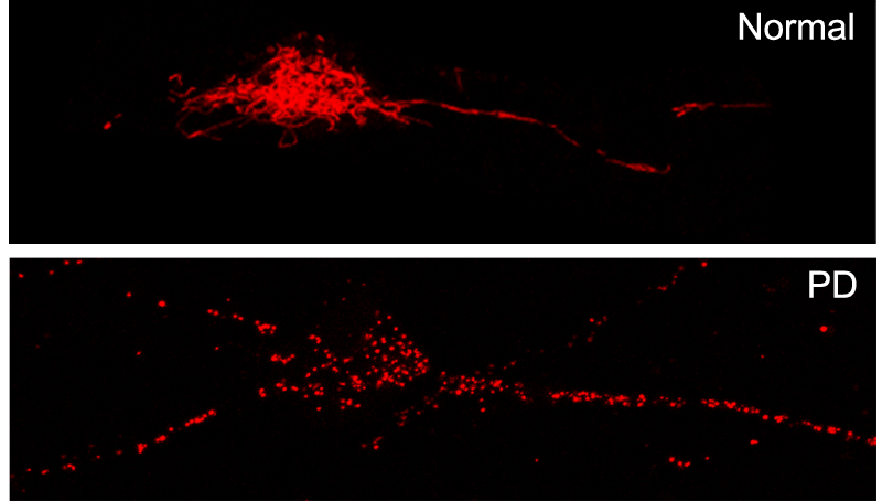 Mitochondria of normal and PD neurons labeled with MitoDsRed.  Mitochondria from PD neurons are highly fragmented