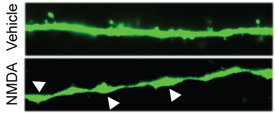 High dose exposure to NMDA results in a loss of dendritic spines