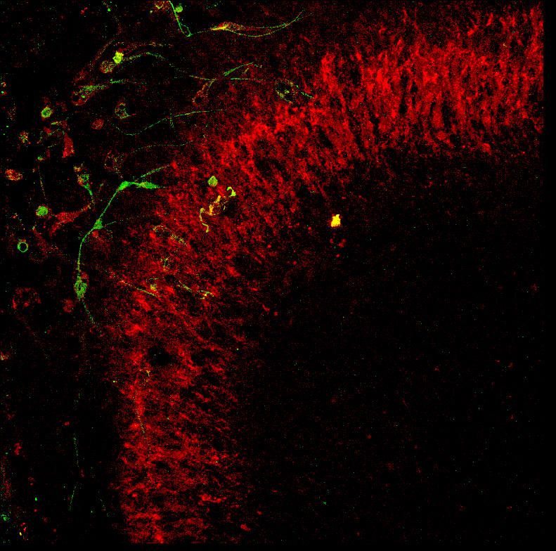 GFP Expressing NPCs (Green) transplanted into living hippocampal slices functionally incorporate into the CA3 granule layer (Red)